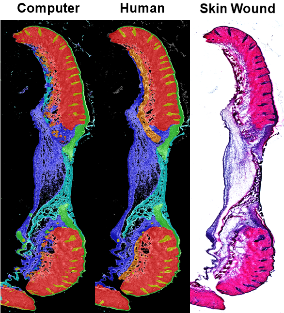 Three images of a wound in augmented colors