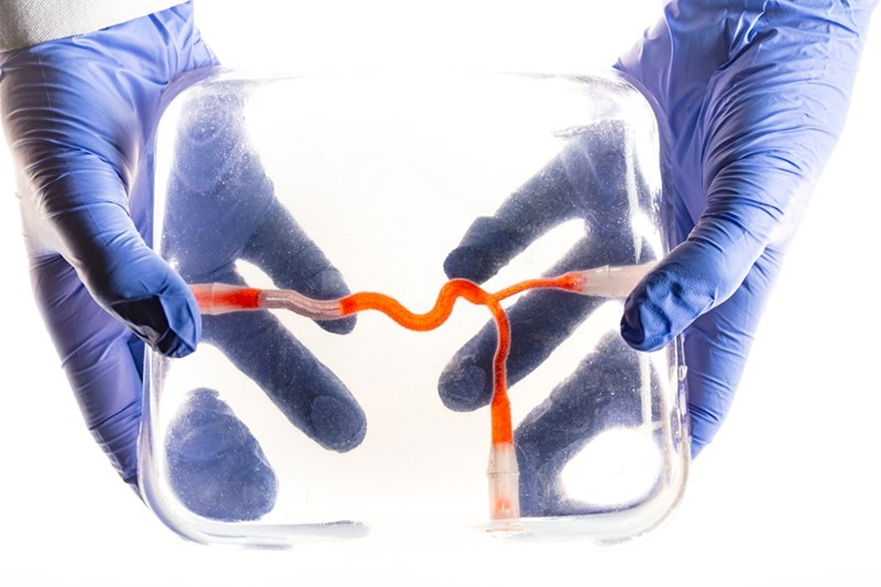The gel model created by Vivas and Humimic has small interior channels that simulate human blood vessels.