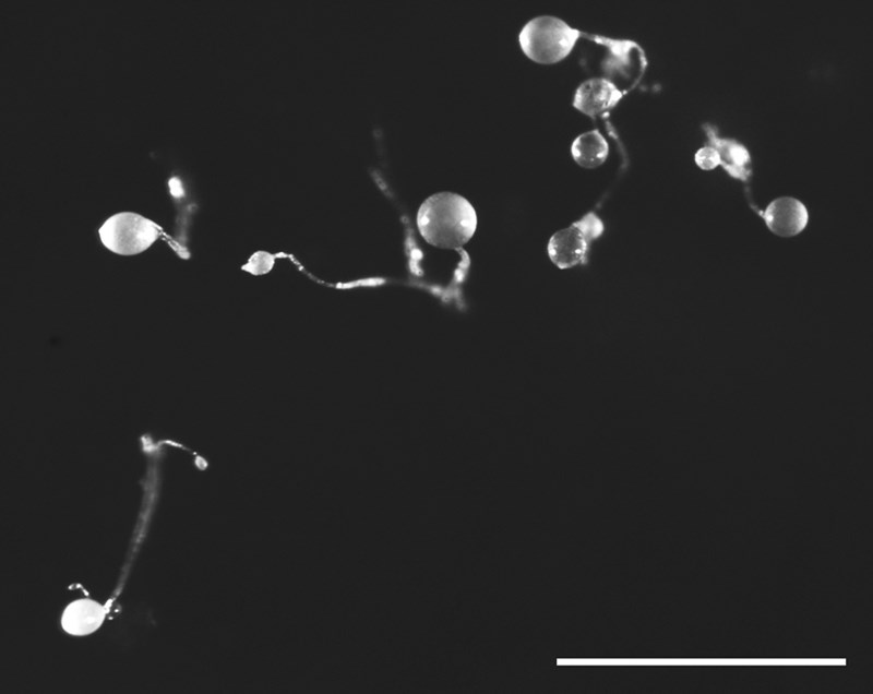 Fruiting bodies of Dictyostelium barbarae. Dictyostelds are small, and the scale bar in the image represents one millimeter, about the thickness of a dime.